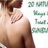 20 mejores remedios caseros quemaduras de sol - un alivio inmediato de las quemaduras solares