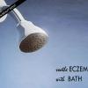 Top 5 calmar el eczema con baños curativos